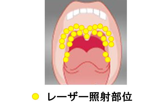 治療 いびき レーザー <いびき治療体験>のどちんこレーザー治療後の結果報告